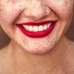 5 consejos para tener los dientes más blancos